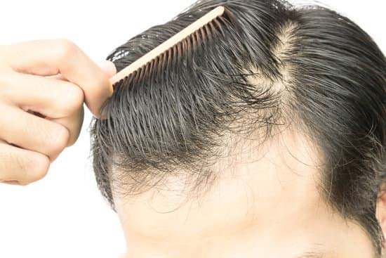 To stop balding ways How to