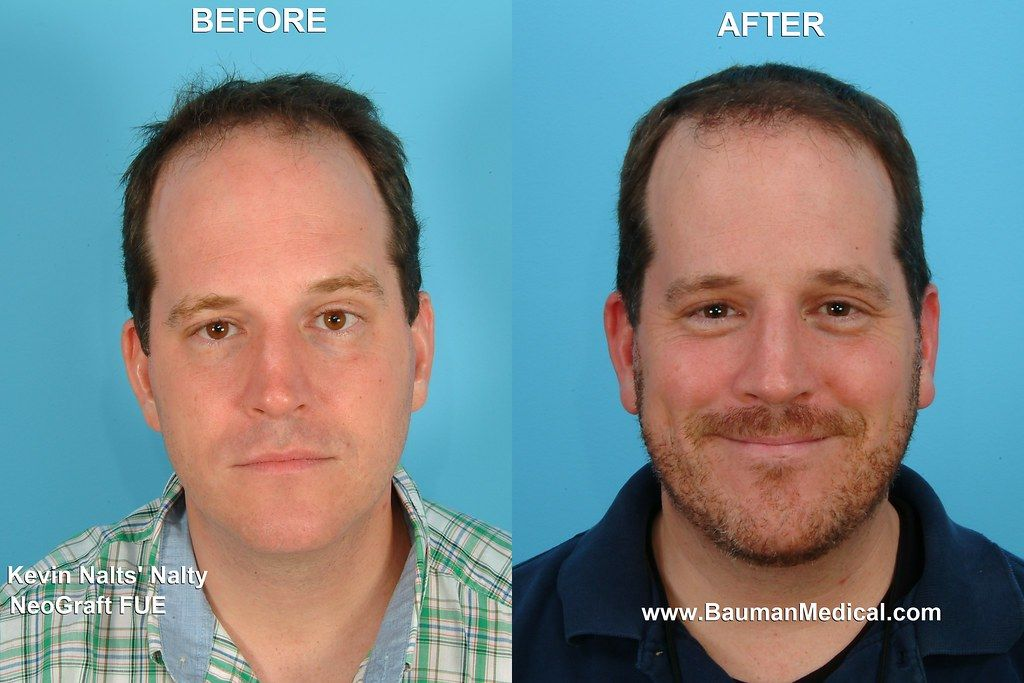 beard-transplant-before-and-after