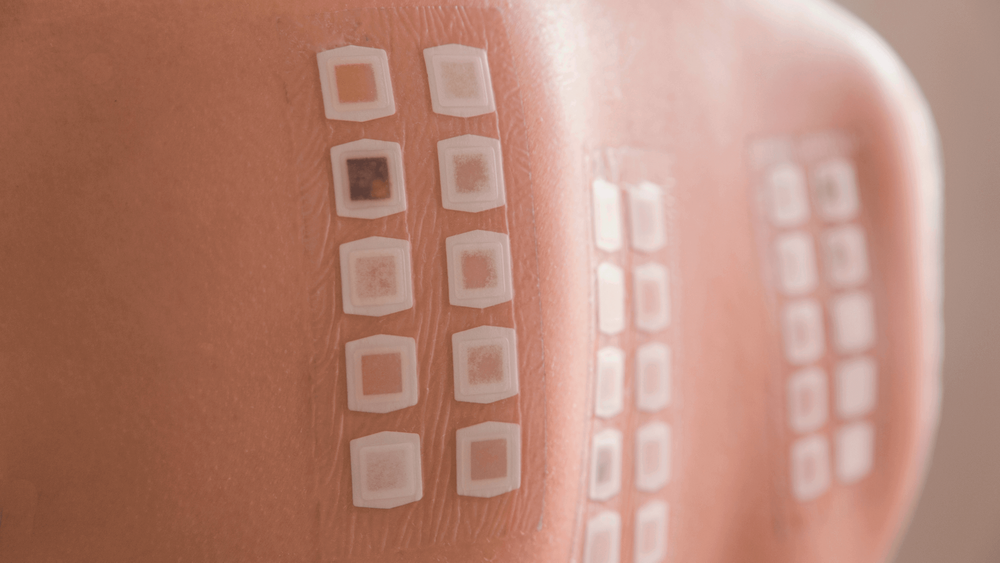 What Is A Patch Test And How Is It Done? | Know All About Patch Test