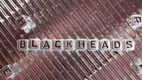 Blackheads: Treating Blackheads and Home Remedies
